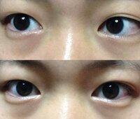 アイプチによる眼瞼下垂について 小6くらいからアイプチをはじめて 毎日やっていたわけではなく 休日や帰宅後に線をつくるために よくしていました。 中3くらいから若干クセがつき 片目だけ二重という感じで...