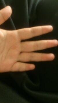 飲食店でトレイを片手に持つのですが、上手くいきません。バイト二日目、グラスを一つ割ってしまいました…。 小指が極端に短く(薬指の第二関節くらいまでです)そのせいでバランスがとれないの か…、私には向いてないのでしょうか。 同じように一本だけ指が短い方、コツを教えて下さい。 因みに左手はトレイ、右手には他の物を持つので右手で支える事は出来ません。 レストランで、鉄板や水入りグラス等の重...