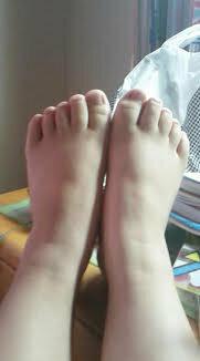 ~甲高、幅広の足のせいで可愛い靴が履けません~ 本当に足には悩まされてきました。  サイズ自体は21・5なんですが、サンダルなどはLでないと幅は広いため入りません。  ですが、長さがすごくあまってしまい本当にぴったりの靴に出会うことができません。  整骨院に行ったら治るんですか?  アドバイスください。回答宜しくお願いします。  画像は、私の足です。