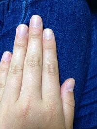 こんな丸い爪にマニキュアでおしゃれしても可愛くないですよね? 今度親戚の結婚式があるのでしようと思ったのですが…