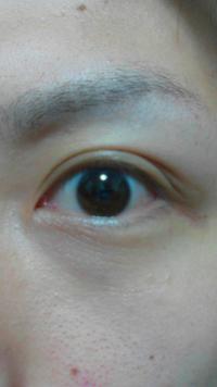 【画像あり】この目は平行二重でしょうか?それとも末広二重でしょうか? また、蒙古襞は見られるのでしょうか?