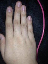 私は最近中指が曲がってるような気がします これって何かの病気でしょうか?