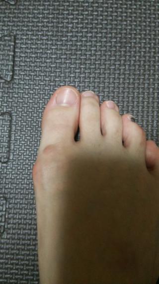 親指付け根 しこり 足