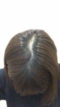 相談です  髪の毛の分け目が薄く悩んでいます。写真のとおり普通の人よりも薄いですよね? 外を歩く時も頭頂部が気になり、特にエスカレーターでは隠れたいくらいです。 増やすことは難しく とも、帽子やカツラ以外で気にならなくする方法はあるでしょうか。
