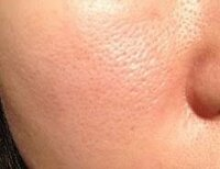 肌のことについてです。 私は女子高生です。最近になって鼻の横の頬の毛穴が目立つなぁと思い気になり始めました。 原因は中学の時に外でテニスをやっていて余り日焼け止めを塗らなかったことかな?ともおもいつつ…原因がわかりません。  日焼け止めを塗るとこの写真のようにすごく毛穴が目立つようになります!  これは毛穴が開いて凹んでいるのか、毛穴が汚れているのかどちらなのでしょうか? 教えて欲しいです。...