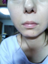 このような、奇形レベルの気持ち悪い、大きい鼻と、唇の気持ち悪さは、やっぱり整形以外に方法はありませんよね。