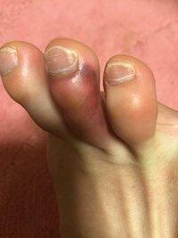 小指 ぶつけ 内出血 足 の た 家具に足の「小指」をぶつけると激痛、なぜ? 他の指より本当に痛い?(オトナンサー)