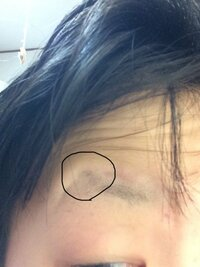 眉の剃り跡に困っています。  剃り跡というよりは、元の眉の形がくっきりついてしまっていて 並行眉など書いても 跡が目立ってしまいます。 剃り跡はコンシーラーで隠すものだということは知っていますが 私のように形がくっきり残っている場合どうしたらいいのでしょうか。 この形に沿ってしまうと、キツめの眉になってしまい、並行眉にしたいので困っています。  文章がまとまらず申し訳ないです。...