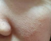頬のぱっくり毛穴がひどく、鼻も黒ずみやでこぼこ毛穴が目立ちます。メイクしても毛穴落ちするし、毛穴に効果がある下地を付けても逆に際立って見える気がします。乾燥していたり、ターンオーバーがきちんと行われて いないと毛穴が目立つみたいなんですが保湿ケアはしていますし、どうケアしていいのかわかりません。 敏感肌なので、基礎化粧品も無添加の刺激のないものを使っています。クレンジングもミルクの無添加のも...