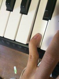 ピアノ初心者です。 ピアノを始めて数日です。 小指を使って弾き始めたのですが、すぐ小指が痛くなります。 写真のように小指が曲がってしまうのが原因でしょうか?  早めに癖は直しておき たいので改善方法...