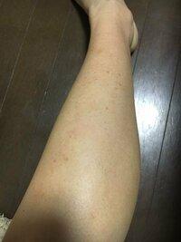 写真のように、毛を抜いた跡が消えません。 足の毛を無理に抜いていたせいか、 気づけばこんな赤い跡だらけの脚になってしまいました。  最近では剃刀で剃って、ケアまでちゃんと行っているのですが治りません。 ...