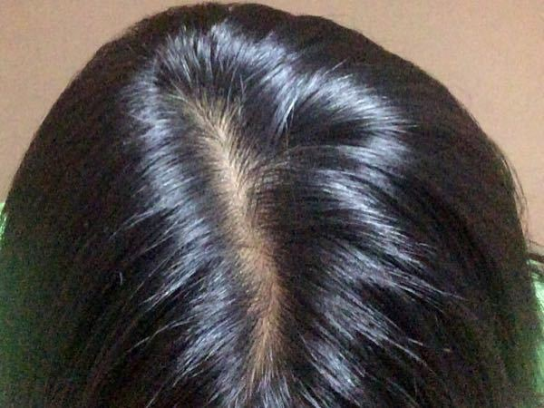 抜け毛がひどいです。 助けてください。 私は今高校生3年生、女子です。 最近親に、あんたてっぺ...