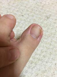 爪にできた茶色い斑点について教えてください(><) しばらくの間マニキュアを塗っていて先ほど新しいのに変えようとマニキュアを落としたところ左の親指の爪だけに小さい多数の茶色い斑点が出来ていました(&...