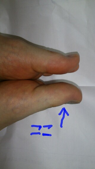 爪下血腫,付け根,内出血,自然治癒,付け根部分