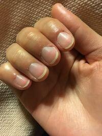高校1年女子です。 私は中学生まで爪をむしる癖が直らず、高校に入ってからなんとかむしるくせは直しました。 しかし深爪が一向に治りません。 私は重度の合掌多汗症で、親にはそのせいで爪が浮いているから深爪というのもあると言われました。 私の爪は確かに深爪ではあるのですが、指の肉にくい込んでる感じではなくむしろ浮いていて、皮膚と爪が密着しなくて、爪のピンクのところの面積が狭い感じです。 爪をむしる...