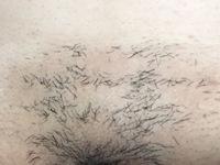 脱毛の照射漏れか判断お願いします。  写真はトライアングル部分です。  ミュゼでVIO脱毛照射してから、二週間たち、ムダ毛が抜け落ちてきましたが、このようなムラになりました。 毛周期 により抜け落ちない部分があるというのは承知済みなのですが、明らかに3×3のマス目状に抜け落ちています。 そのため抜け落ちた部分しか照射されていないのでは?と疑問になり投稿致しました。  経験者の...