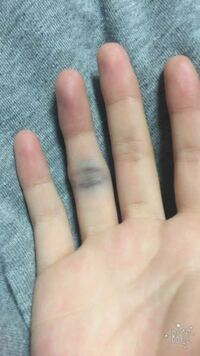 症状 突き指 突き指の症状と治療および予防法