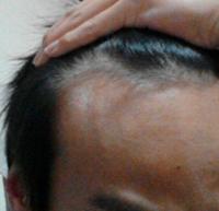 画像の通りM字ハゲなのですが、似合う髪型はありますか?髪型の名前もお願いします