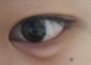 片目 痛い 袋 腫れ 涙
