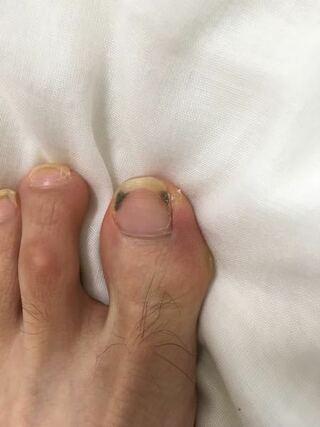 爪 臭い 垢 の 足