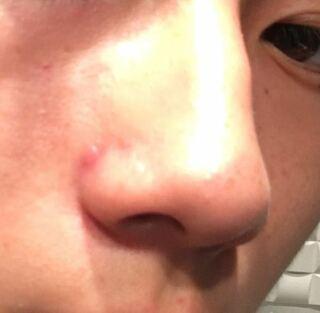 ニキビ 鼻 の 意味 横