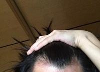 生まれつきでこのようにM字型のおでこなのですが、これは禿げてるんですか? (少々赤みのある部分はアトピーです)