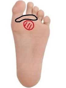 妊婦 足 の 裏 痛い 足の裏が痛い:医師が考える原因と対処法 症状辞典