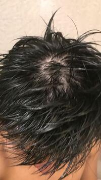 髪濡れてる状態でこれなんですけど。どー思いますか? 薄いですかね? つむじ周辺が本当に怖いです。