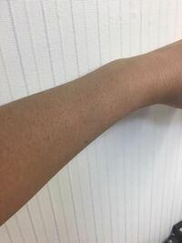閲覧注意、汚いです 高校生の女です!いきなりですけどこの腕って毛深いですか??