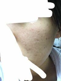 閲覧注意です⚠︎ 女子高生、オイリー肌です。 ニキビ跡の赤み、凸凹があります。 これはBBクリームとフェイスパウダーで 肌をツルツルに見せることは出来ますかね?