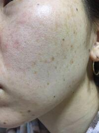 30歳女です。 肌が汚くて汚くて悩んでいます。皮膚科に行ってもビタミン剤を処方されるだけで改善されず、エステには汚い肌を見せたくなく行けません。 クレンジング、洗顔、化粧水、パックなどの保湿等、高価な...