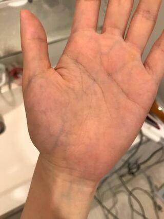 手 腕 に 浮き出る 血管 は こうして 改善 する