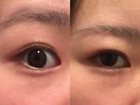 二重埋没をしてから1年4ヶ月経ちました。 二重になって大分楽になったのですが、まだ少し悩みがあって、普段は眉を軽く上げて目を開いている(画像左)のですが、力を入れないと(画像右)本当は奥 二重なんです。 ...