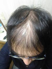 ハゲで悩んでます。 20代前半ですが、この年代でこれ以上ないくらい禿げています。  AGA治療で治るものでしょうか。  AGA治療で治らない場合、何かいい髪を増やす方法などはありますか。  正直、てっぺんは諦めが...