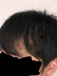 横の髪がこんな感じで、スカスカになってしまうのですが、禿げてるのか、癖でこうなってしまうのか、どっちなのでしょうか