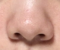 彼女がこんな鼻だったら嫌ですか? 他のパーツがよくても