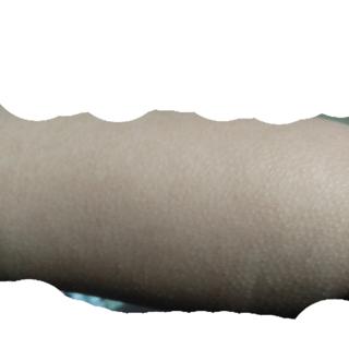 皮膚 科 鮫肌