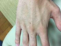 女性の方に質問です! 男の指毛や手の甲の毛って嫌ですか?  脱毛しようか迷ってるので答えていただけると有難いです!