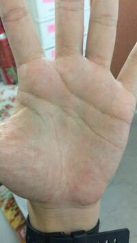 手の真ん中にある目のような形の線はファティマの目と呼ばれるものでしょうか? 手相に関して詳しくないので、教えて頂きたいです。
