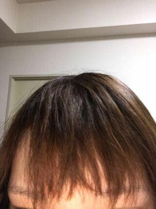 髪 痛む パーマ