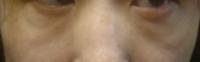 40代です。急に目の下がたるむようになりました(下の画像)。ネットで調べてアイクリーム(アイキララ、アイムピンチ、LEVIGAモイスチュアセラム、ナノクリアオールインワン)を試してみたり、プラセンタを塗ったり...