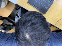 まじめに悩んでいます。 年齢は19歳です。 もともと、髪の毛が細く毛量は少ないのですが、これは、ハゲですか? ハゲなら対策を教えてください。