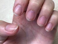 ①甘皮処理できているか ②この爪にどういう印象を持つか 教えてほしいです