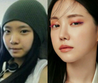 韓国人女性アイドルではやはり鼻の整形が主流なのでしょうか?