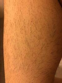 すね毛の処理について質問です。男子高校生です、剃ったらこんな感じになってしまったのですがどうしたら清潔感ある感じの足にできますか? クリームとかあるらしいですがどこのがよくてどこで購入すればいいので...