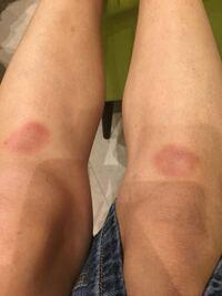 赤い あざ 突然 皮膚の悪性腫瘍(皮膚がん)【品川区 あおよこ皮膚科クリニック】
