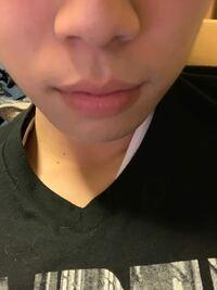 20歳で昨日剃ってこのヒゲは濃いですか?