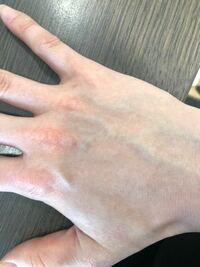 手の甲 赤い 点 手の甲の赤い点 -結構前からあるんですけど、これなんですか?かゆみも-