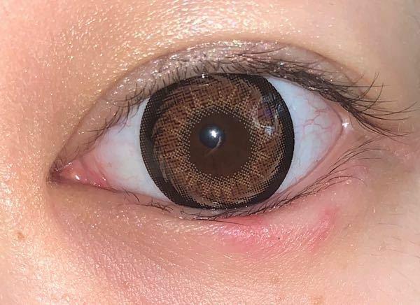 が 痛い ヒリヒリ 目 知っておこう!コンタクトレンズ装用中に目の痛みを感じたときの対処法