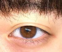 天然の平行二重です。 僕の目に蒙古襞はありますか?